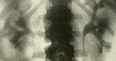 FOTO: RTG ledviny