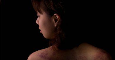 Kampaň s názvem To je rovnost! upozorňuje na domácí násilí